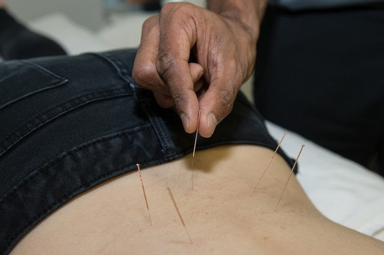 acupuncture clinic near me