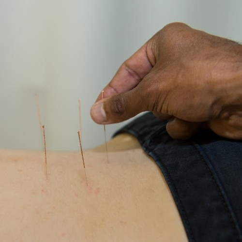 best acupuncture near me