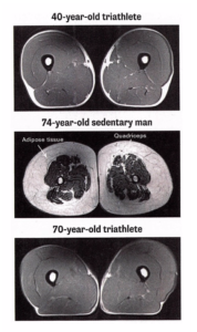 thigh muscles of triathlete vs sedentary aging adult
