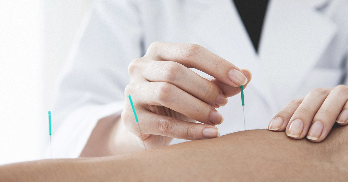How Long Does it Take for Dry Needling to Work