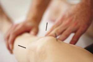 How Long Does Dry Needling Take To Work