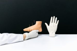 What Should You Know About Dry Needling